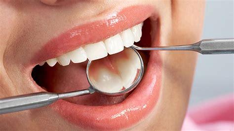 Cáncer Oral: Prevención, Tratamiento y Autoevaluación→