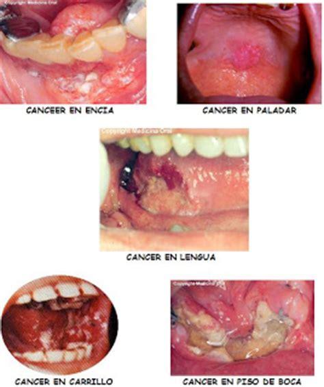 CANCER ORAL: septiembre 2008