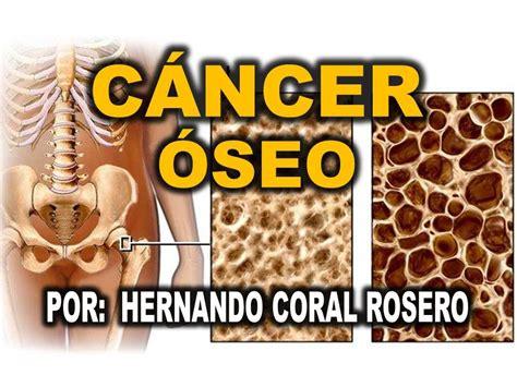 CANCER OSEO   CANCER EN LOS HUESOS   YouTube