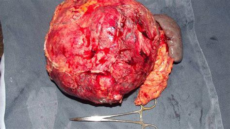 Cancer pancreas Endocrino No insulinoma.   YouTube