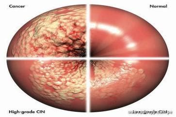 cáncer   Papanicolau