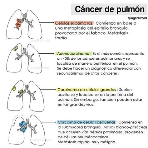 Cáncer Pulmonar   Ingeniumed