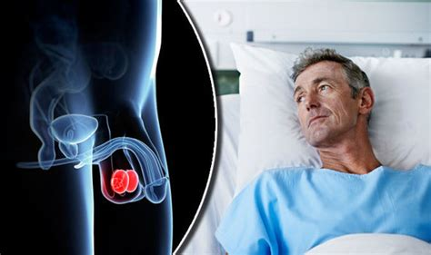 Cancer symptoms: Diarrhoea and constipation could be signs ...