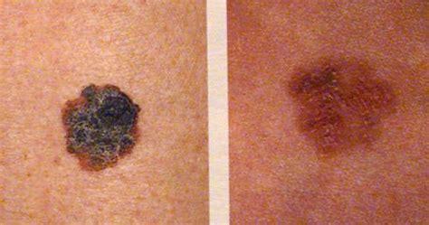 Cancer: Tipos de Cancer , causas, consecuencias y medidas ...
