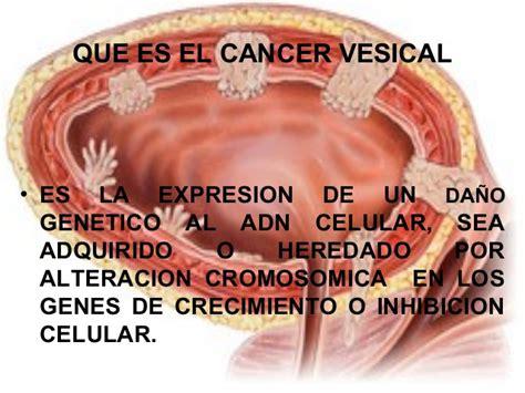 Cancer vesical