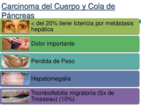 Cancerdepancreas