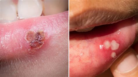 Canker Sore vs. Cold Sore: What s the Difference?   Health
