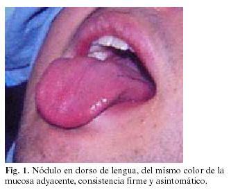 Carcinoma adenoideo quístico del dorso de la lengua ...