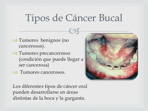 Carcinoma bucal
