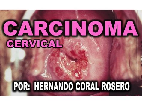 CARCINOMA CERVICAL   CANCER DE CUELLO UTERINO   YouTube