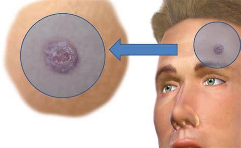 Carcinoma de células escamosas de la piel   Personas Que