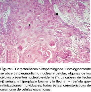 Carcinoma de células escamosas en lengua en un paciente ...