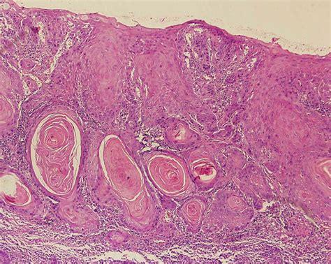 Carcinoma de Células Escamosas | Estomatologia Online