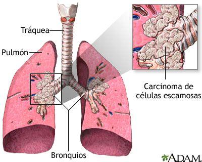 Carcinoma de células escamosas: MedlinePlus enciclopedia ...