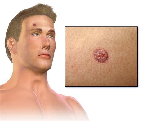 Carcinoma de células escamosas   Wikipedia, la ...