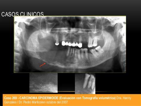 Carcinoma epidermoide oral y orofaríngeo