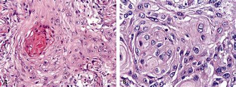 Carcinoma Epidermoide Primario de la Mama: Una Infrecuente ...