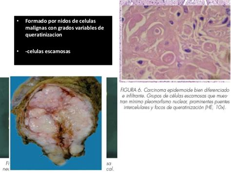Carcinoma epidermoide Vesical