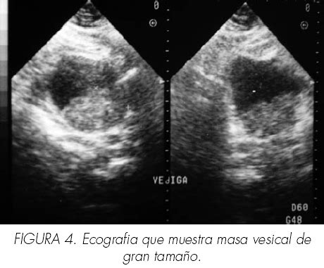 Carcinoma epidermoide vesical: Revisión de nuestra serie