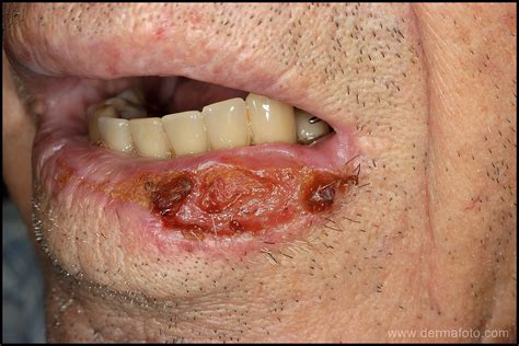 Carcinoma escamoso de piel   Didac Barco, dermatólogo