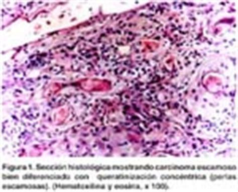 Carcinoma escamoso de recto y fístula rectovaginal ...