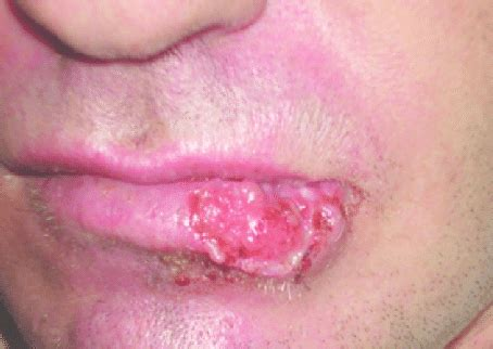 Carcinoma espino celular de labio . Lesión ulcerada en ...