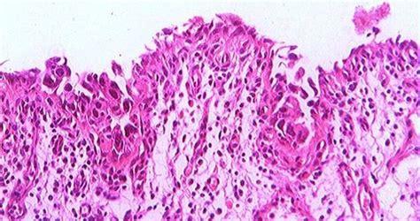 CARCINOMA IN SITU VESICAL   Binipatia e higienismo