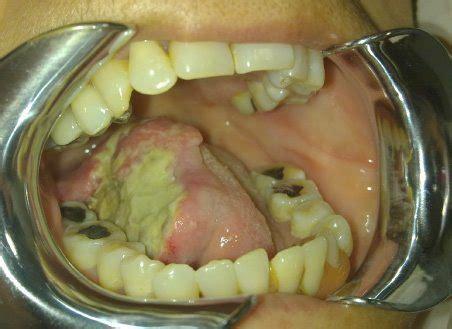 carcinoma oral de células escamosas – Odontología Actual