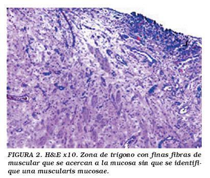 Carcinoma urotelial de vejiga estadio T1: subestadiaje ...