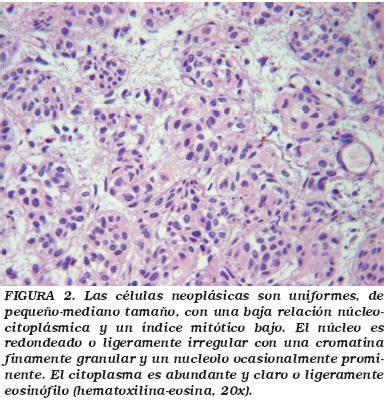Carcinoma urotelial de vejiga tipo Nested: Una variante ...