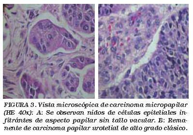 Carcinoma urotelial micropapilar de vejiga: Aportación de ...