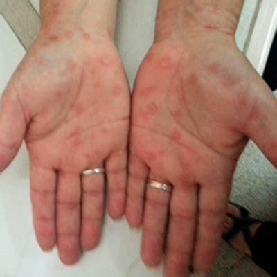 CASO 236: Fiebre, hepatitis y lesiones en palmas de las ...