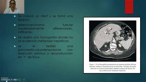 Caso Clínico por Colangitis Aguda debido a Neoplasia ...