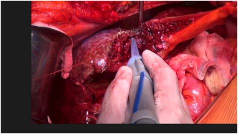 Category: Stage 4 Cancer Liver And Colon | MORE IN CANCER A Z