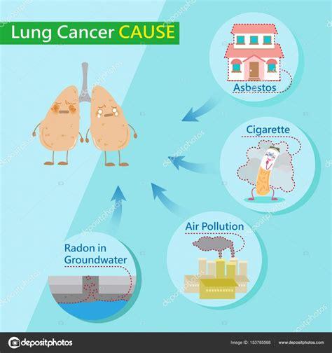 causas de cáncer de pulmón — Vector de stock ...