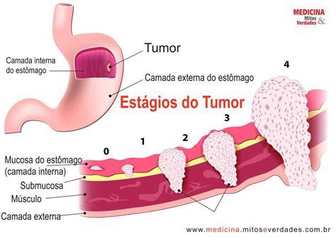 Causas do câncer de estômago   Medicina   Mitos e Verdades