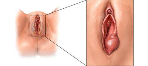 Causas y remedios para la bartolinitis: Inflamación de las ...