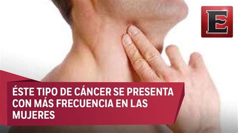 Causas y síntomas del cáncer de tiroides   YouTube