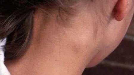 Causas y tratamiento de ganglios linfáticos inflamados en ...
