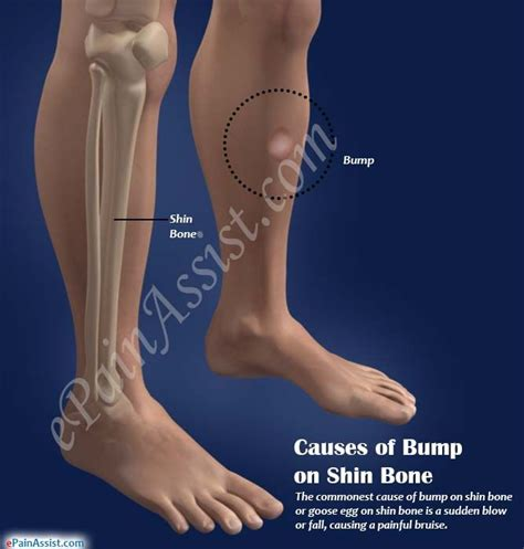 Causes, Symptoms of Bump on Shin Bone & its Natural ...