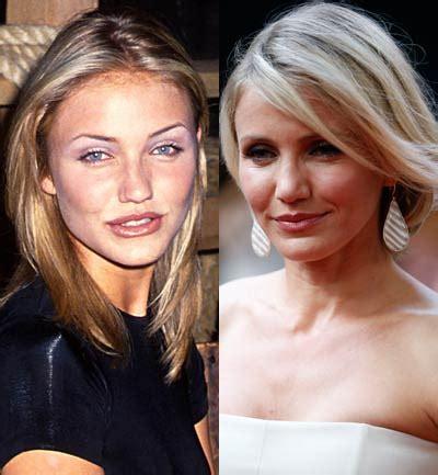 Celebrities que no deberían haberse operado   Cameron Diaz
