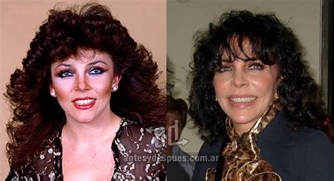 » Celebrities with Plastic Surgery | Before and After ...