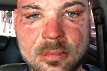 Certifica quemaduras de primer grado en rostro Houchin ...