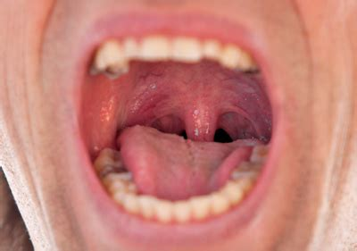 Changes in Mouth   Cancer Signs & Symptoms   Spotting Cancer