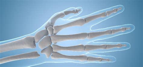 Chasquear los dedos desgasta las articulaciones ...