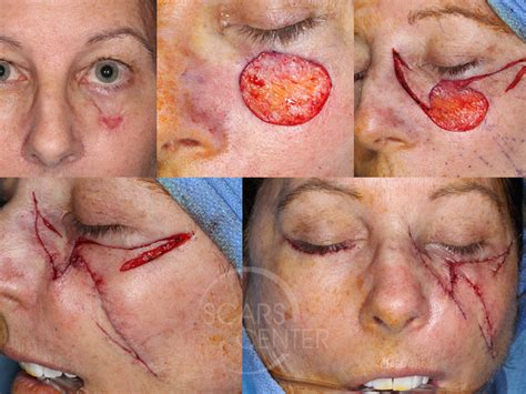 CHEEK AND EYELID RECONSTRUCTION WITH MULTIPLE PARTIAL ...