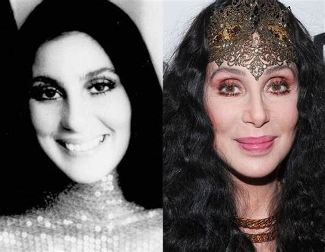 Cher from Better or Worse: Celebs Who Have Had Plastic ...