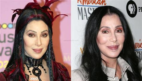 Cher Plastic Surgery Before and After – Celebrity Dr.
