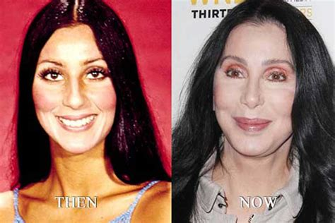 Cher Plastic Surgery: Breasts augmentation, Nose Job, Facelift