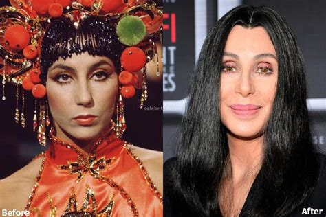 Cher Plastic Surgery Procedures: Details and Before After ...